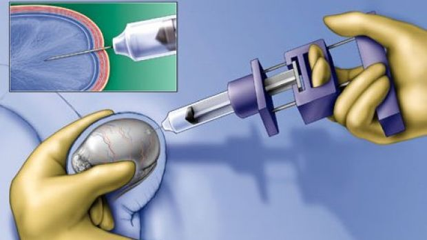 Testicle Made Vaccine Against Ovarian Cancer