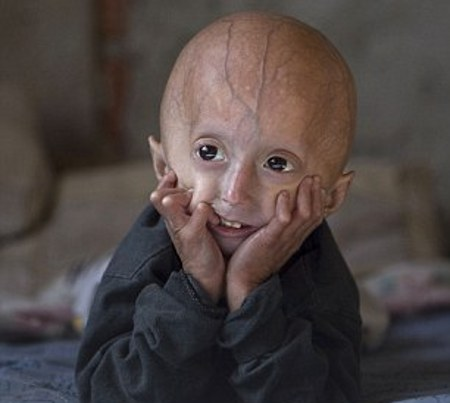 4 Year Old Suffering From Rare Aging Disease Has The Body Of An Old Man
