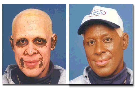 Black Pepper To Treat The Skin Disease Of Michael Jackson