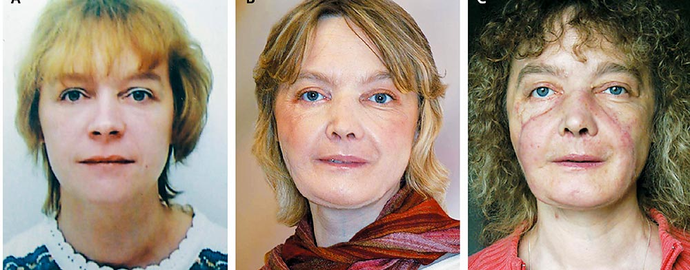 Apologise, but facial first transplant world