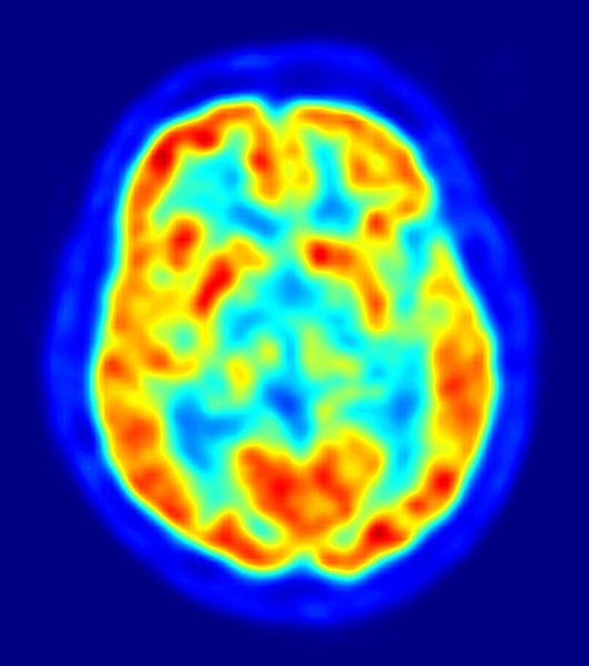 Structural Abnormalities Found In The Brains Of Psychopaths