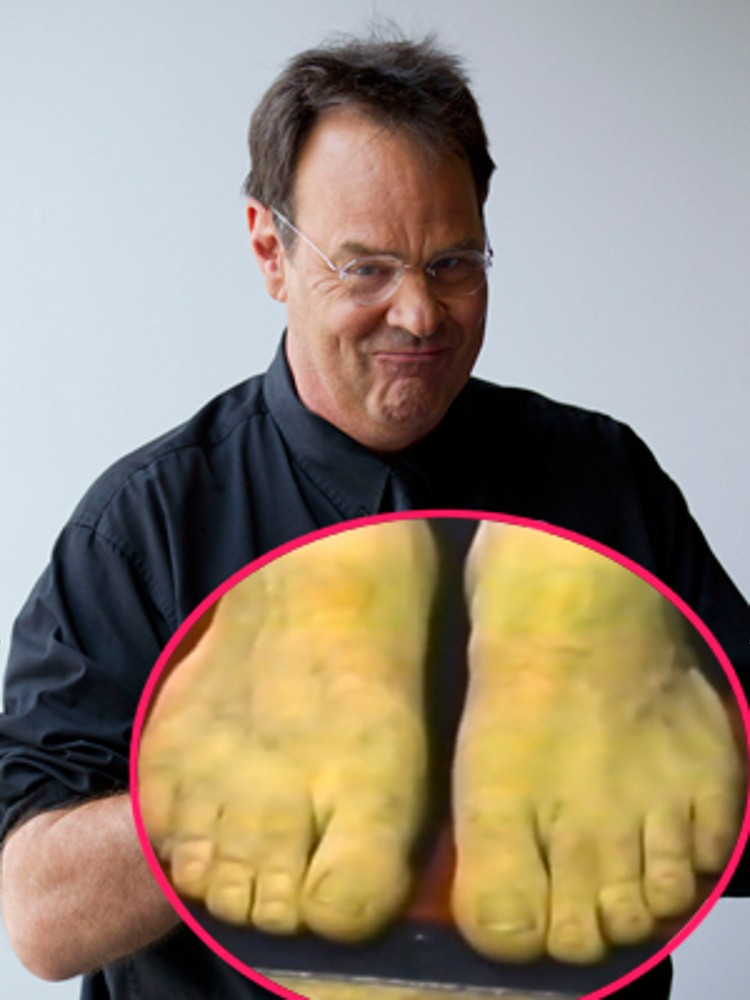 The Weirdest Physical Defects Celebrities Have