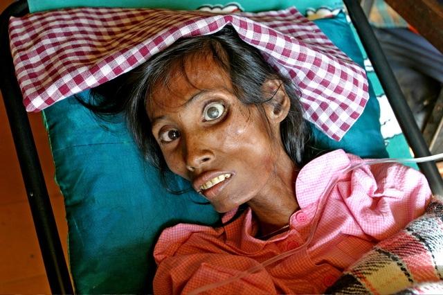 AIDS patient in India