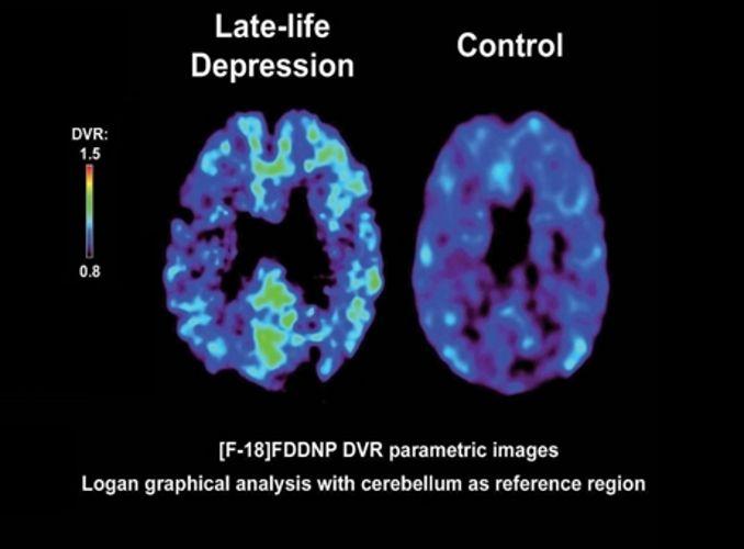 Unique Brain Scan Technique Sees Depression in Seniors
